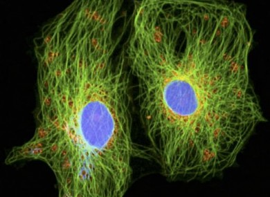 Cancer cells as seen through a special microscope allowing observation of living organic material. The blue nucleuses have approximately 12 micrometers in diameter.