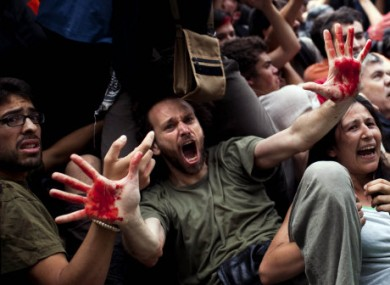 A demonstrator shows his hands covered with the blood of another protester as police try to remove them during clashes in Barcelona today.