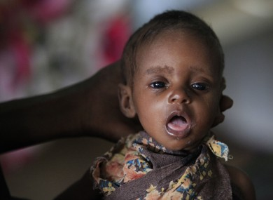 Two-month-old Fulhado Daud Aliyow rests in his mother's hand at a hospital where he is being treated for malnutrition in Dagahaley Camp, outside Dadaab, Kenya on Friday.