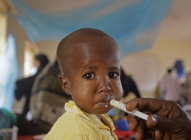 An unidentified child receives treatment for malnutrition in Kenya.