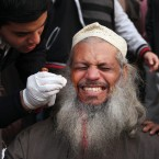 A wounded Egyptian protester reacts as a medic treats him in Cairo. (AP Photo/PA Images)