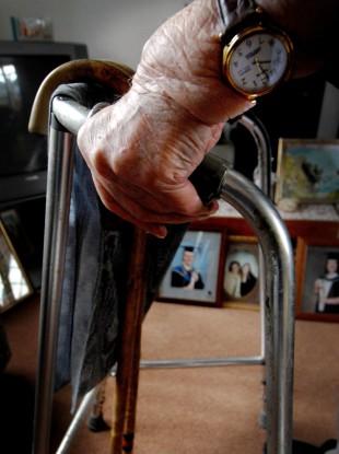 File photo of a rheumatoid arthritis suffer