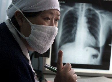 A doctor talks to a patient suspected to have tuberculosis at the Beijing Chest Hospital, file photo