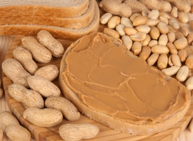 Peanut products and other tree nuts are major sources of allergic reactions in Ireland.