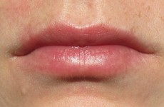 Woman accidentally superglues lips together