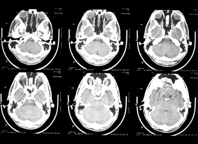 Brain scans.