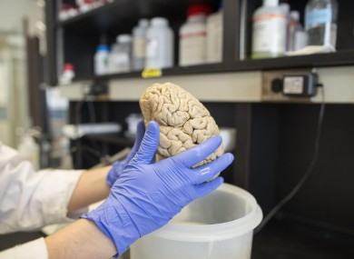 A researcher holds a human brain in a laboratory at Northwestern University's cognitive neurology and Alzheimer's disease center in Chicago