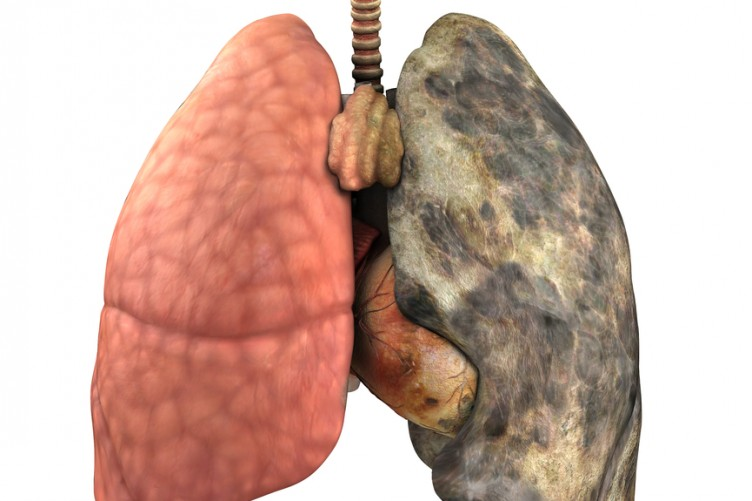 Gallery images and information: Real Healthy Human Lungs