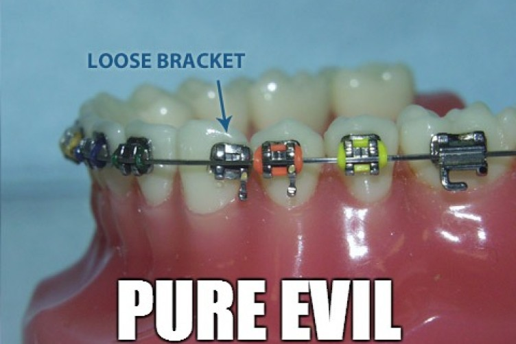 12 problems only people who had braces will understand the daily edge solutioingenieria Gallery