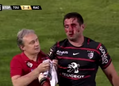 Florian Fritz was allowed to return to the field after being knocked out in a Top 14 barrages match.