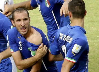 Italy's Giorgio Chiellini displays his shoulder showing apparent teeth marks after c