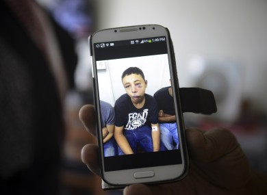 Suha Abu Khdeir, mother of 15-year-old Tariq Abu Khdeir, a US citizen, shows a mobile phone photo of Tariq taken in a hospital after he was beaten and arrested by the Israeli police