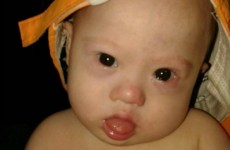 Parents 'abandoned' baby with Down syndrome born to surrogate