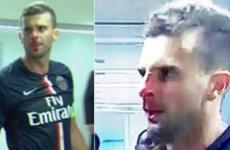 Brandao handed provisional ban for headbutt that broke Motta's nose