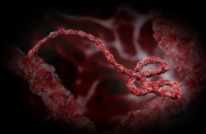 Test results expected in suspected Ebola case