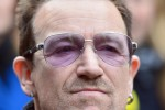 Bono had 'three metal plates and 18 screws' inserted into his elbow following his accident