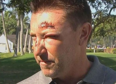 The incident took place after Allenby had missed the cut at the Sony Open in Hawaii.