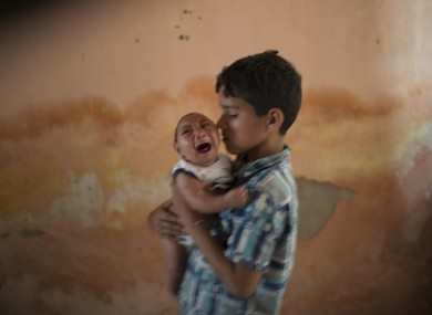 A two-month-old child in Brazil born with microcephaly
