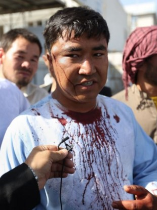 An injured man in interviewed by journalists after an explosion struck a protest in Kabul.