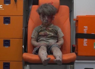 Five-year-old Omran Daqneesh sits in an ambulance after being pulled out or a building hit by an airstirke, in Aleppo.
