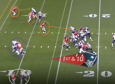 Denver's predictably in man coverage helped the Patriots score their first touchdown on Sunday.