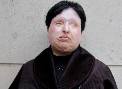 Ameneh Bahrami in 2009. She now lives in Spain.