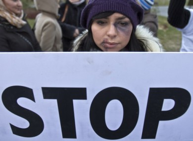 A young Romanian woman wearing makeup takes part in a protest in Bucharest last year.