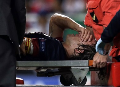 Puyol is stretchered off last night.