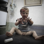A wounded child awaits treatment in one of the few hospitals left standing in the northern Syrian city of Aleppo, in October 2012. <span class=