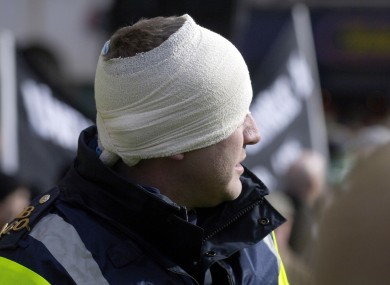 A garda injured in clashes with rioters in 2006.