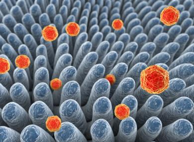 Hepatitis A viruses infecting intestine - 3D illustration.