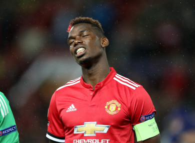 Pogba suffered the injury two weeks ago.