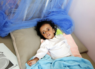 A famine-suffered child lies on a bed as he receives treatment at al-Sabaeen hospital in Sanaa, Yemen