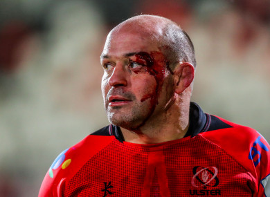 A bloodied Best post-match.