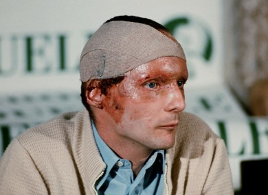 Niki Lauda pictured after the accident.