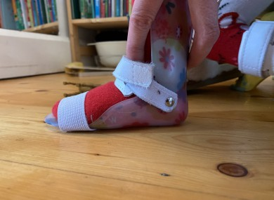 An AFO splint on a two-year-old's foot - the shoe must take the size of the AFO into account.